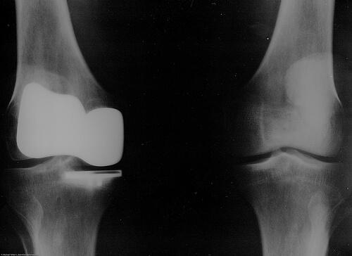 関節痛ではなかった?痛みの原因「トリガーポイント」ってなに?