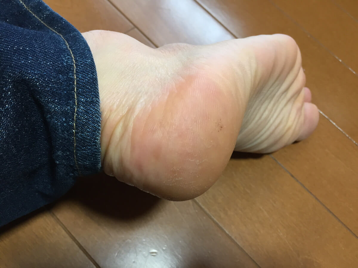 kakato_care4